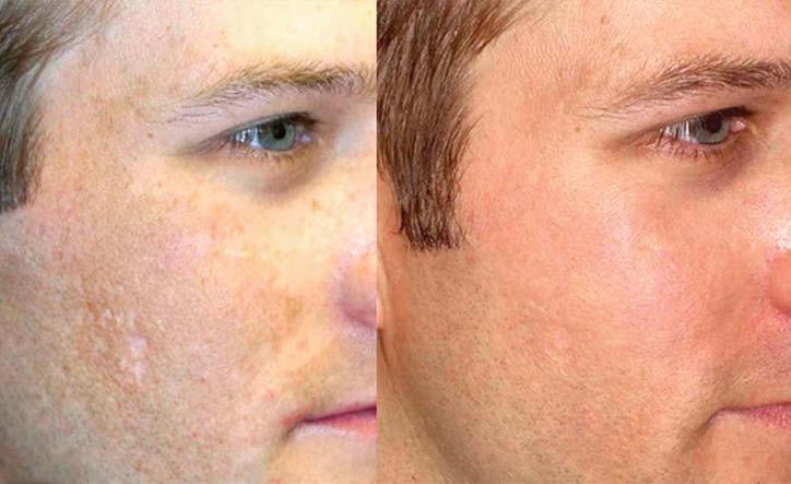 تاثیر کلاژن بر پوست و مو